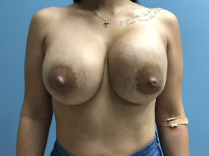 Breast Lift Miami